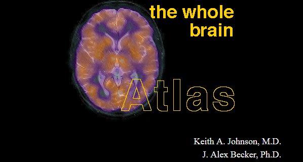 atlas mózgu